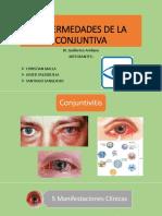 Enfermedades de La Conjuntiva