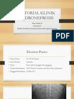 Atika - Hidronefrosis Tutorial Klinik