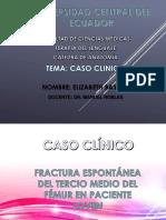 Fractura Femur.pptx