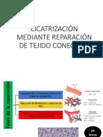 CICATRIZACIÓN Patologia