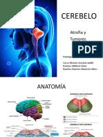 Atrofia Cerebelosa y Tumores
