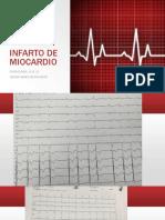 Infarto de Miocardio (2)