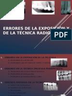 Errores de La Exposición y de La Técnica Radiográfica PPT