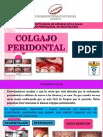 Exposicion Colgajo p.