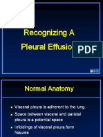 Recognizing a Pleural Effusion