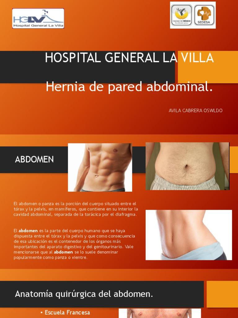 Hospital General La Villa-hernias