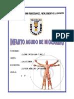 Infarto Agudo de Miocardio