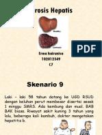 EK Blok 17 Sirosis Hepatis