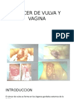 1. Cancer de Vulva y Vagina
