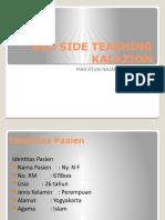 BST Kalazion