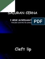 SA. CERNA II WR