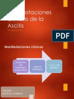 Manifestaciones Clinicas de la Ascitis.pptx
