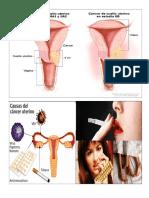 Cancer de Cuello Uterinos