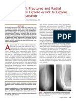 Humeral Shaft Fractures and Radial palsy.pdf