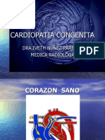 Cardiopatia Congenita Rx