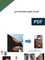 TB Investigasi Kontak