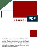 ASPERGLLOMA.pptx