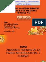 herniasventrales-140123223942-phpapp02