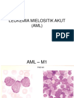 LEUKEMIA.ppt