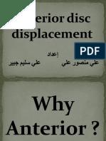 Anterior Disc Displacement