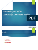 Normal Eyes With Gradually Decrease Vision