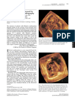 Case Report - Ebstein's Anomaly Assessed by Real-Time 3-D Echocardiography (Short Communication)