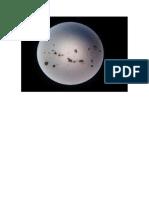 Partículas Extraidas de Grasa
