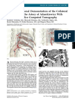 Three-Dimensional Demonstration of the Collateral Circulation to the Artery of Adamkiewicz With 16-Row Multislice Computed Tomography