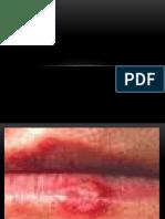 lesiones vesiculo ulcerativa