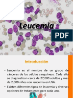 leucemias y linfomas en pediatria.pptx
