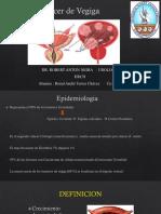 Cancer de Vegiga