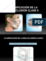 Clasificación de La Maloclusión Clase II