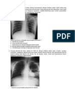contoh Radiologi