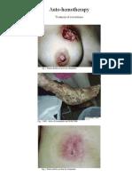 Autohemotherapy - Treatment of Scleroderma