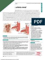 PDF Estenosis de arteria renal