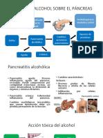 Pancreas Alt Alc