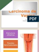 Carcinoma de Vagina