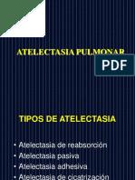 ATELECTASIA PULMONAR