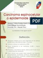 Carcinoma Espinocelular o Epidermoide (CEE)
