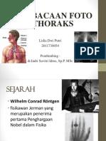 Rontgen Thoraks Refreshing Dr. Indri