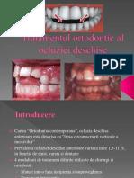 Tratamentul Ortodontic Al Ocluziei Deschise