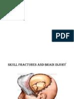 Anatomy Behind Skull Fractures