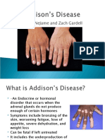 Addisons Disease Powerpoint