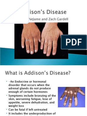 Mechanism of weight loss in addison s disease