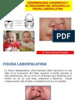 1 PRIMERA CLASE Fisura Labiopalatina