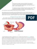 Tratamento Caseiro Para H Pylori
