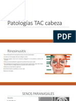 Patologías Cabeza
