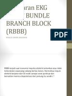 Gambaran Right Bundle Branch Block (Rbbb) Presentasi