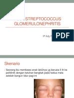 Streptococus Glomerulonefritis