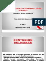 Contusion Pulmonar.2